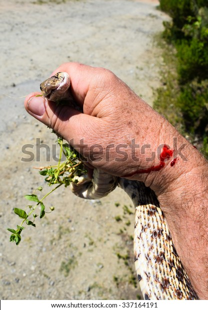 Snake Bite (snakebite) : A Pacific Gopher Snake (Pituophis catenifer)  bites hand of the photographer, with red blood dripping, in the hills of Monterey, California.  (Photographed left-handed)