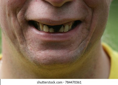 snuff on the teeth