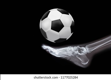 Soccer player's health concept - X-ray normal human's foot with soccer ball