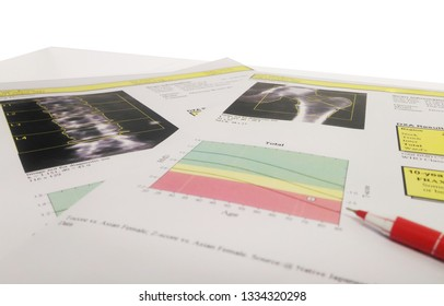 Soft and blurry image:Bone Densitometer hip and spine report paper.on the teble and white background