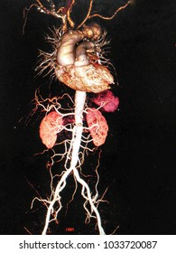 Soft and blurry image,CTA (computed tomography angiographphy)or MRA (Magnetic Resonance Angiography)3D take photo from film x-ray of whole aorta, AP view showing Aortic Arch aneurysm size 5.1 cm.