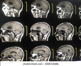 Soft and blurry image:Medical image MRI Brain showing There is diameter cystic mass or tumor at Left frontal lobe Glioblastoma at Lt frontal lobe with metastasis, brain metastases.