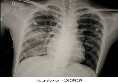 Soft and blurry image:X-ray Chest showing intercostal drainage(ICD) Mild to moderate right pneumothorax with pulmonary contusion and compressive atelectasis of right lung.