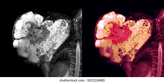 Soft tissue malignant tumor, sarcoma, MRI image of shoulde region. B & W images as well as colored images with enhanced tumor lesion