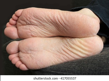 Sole of the foot with fungi mycosis skin disease