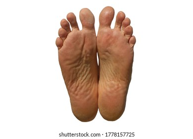 Soles of a man's feet