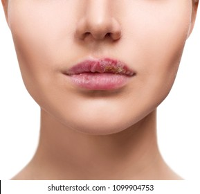 Sore female lips with herpes disease.