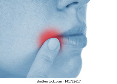 sore herpes, shown red, isolated on white background