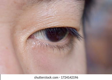 Southeast Asian, Chinese young man with single eyelid or monolid. A monolid means that there is no visible crease line below your brow area. Closeup view.