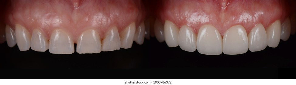 Space closure , whitening and reshape all front teeth with dental ceramic veneers. Before and after.