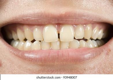 Spacing teeth oral problem, photo for teeth problem