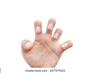 Spasticity of the hand and  fingers Caused by epilepsy isolated on white background.