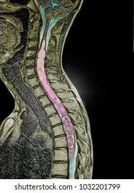 spinal cord tumor, MRI image