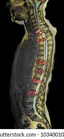 Spinal metastasis, MRI image