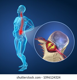 Spinal pain Attack after disc herniation, man suffering from spinal pain. 3D illustration