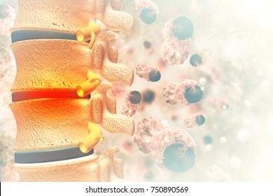 Spine cancer or spinal tumor disease.3d illustration