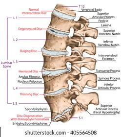 Spine disc problems, degenerative lumbar disc disease, degenerative disc disorder, degenerated disk, bulging disk, herniated disk, thinning disk, disk degeneration with osteophyte formation