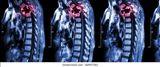 Spine metastasis ( cancer spread to thoracic spine ) ( MRI of cervical and thoracic spine : show thoracic spine metastasis and compress spinal cord ( Myelopathy ) ) ( sagittal plane )
