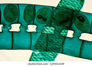 Spirogyra sp. green algae, conjugation under the microscope.