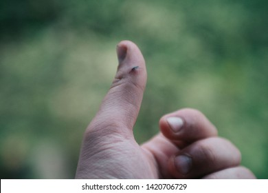 Splinter in the finger after the hard job in wood factory