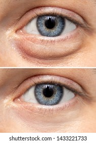 A split screen view on the eyes of a young Caucasian girl, one show fluid retention beneath the eye, and the other shows the results of blepharoplasty surgery.