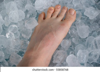 sports injury on ice cube bath concept
