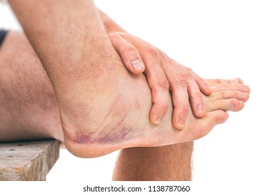 Sprained ankle with bruising isolated on white background
