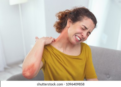 Spreading rash. Young lady in pain looking awfully sick suffering from a spreading skin rash affecting her neck
