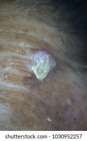 Squamous cell carcinoma of the forehead