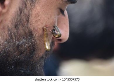 srinagar,j&k,india:2019\03\21 impure blood seen coming out of a Kashmiri patient's face during the leech treatment. in sringar on the occusion of navroz
