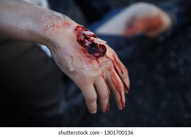 St. Petersburg, Russia - May 12, 2018: contest / exercises on first aid at the pre-hospital stage. Special make-up on the arm, which demonstrates an open fracture of the hand.
