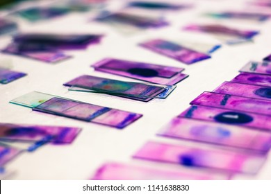 stained glass slides of peripheral blood smear with violet leishman giemsa stain in hematology pathology laboratory