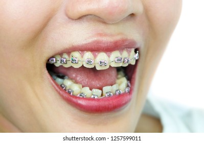 Start the day of Orthodontics.The girl with teeth braces. Open the mouth of a woman. See teeth that are not aligned. concept:  dental braces