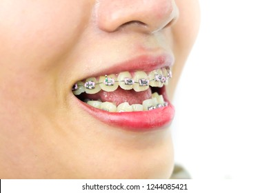 Start the day of Orthodontics.Side facing.The girl with teeth braces.Smiling woman. Open the mouth of a woman. See teeth that are not aligned. concept:  dental braces