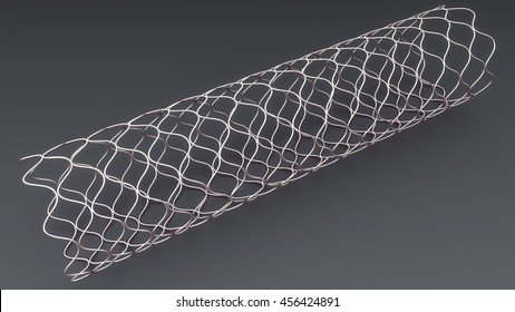 Stent 3d illustration