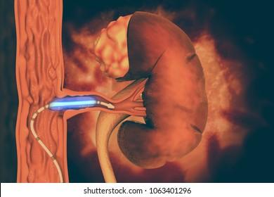 Stent angioplasty. Peripheral artery disease. 3d illustration