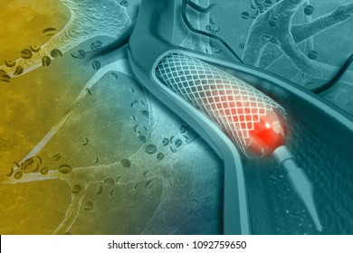Stent angioplasty.3d illustration