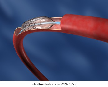 Stent on Balloon in Curved Artery