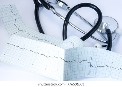 Stethoscope with black air duct tube located near the tape of electrocardiogram (ECG) with one line of pulse trace on the table in cardiologist's or general practitioner office close up front view