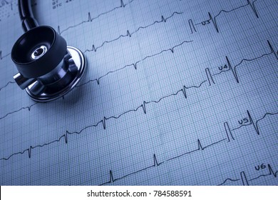 stethoscope and electrocardiogram (ECG)