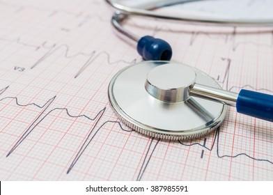 Stethoscope on ECG (electrocardiogram) chart.