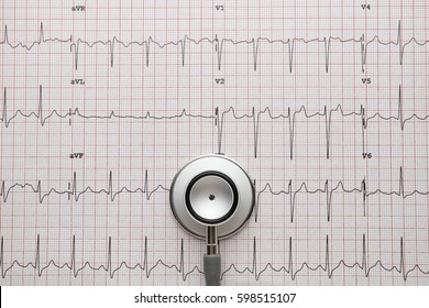 Stethoscope on the ECG. medical symbolic close-up photo
