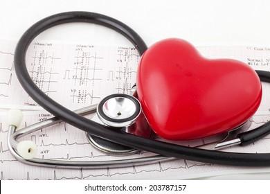 Stethoscope on an electrocardiogram (ECG) chart