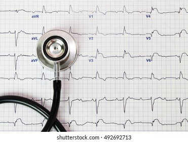 Stethoscope on the electrocardiogram (ECG) graph (top view)