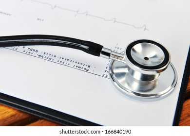 stethoscope on printout of heart monitor -blue tint on wooden background
