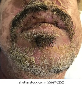 Stevens Johnson syndrome in a man with acute HIV infection with severe seborrheic dermatitis.