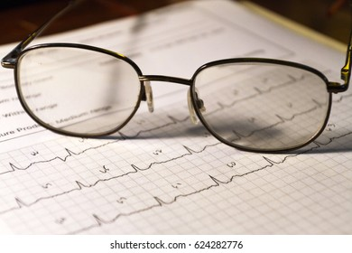 A still life of a page displaying an Electrocardiogram (EKG) heartbeat graph with eyeglasses resting on top of it