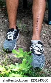 Stitch leg injury. Boy with sneakers