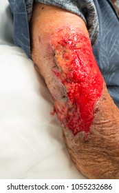 Stitched and degloved arm of a senior man