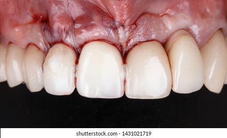 stitched and taut gums with crowns of the front teeth after implantation